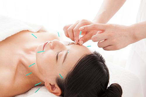 鍼灸の画像 美容を意識する方の予備知識としておすすめ!~皮膚の仕組みと鍼灸について~