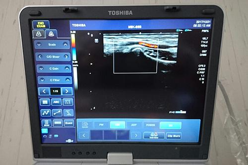 鳳の整骨院【吉岡鍼灸整骨院】は超音波(エコー)で状態の確認ができると口コミで人気