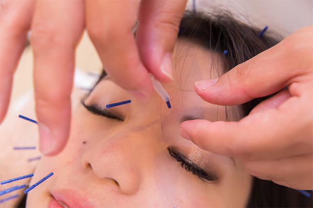 鍼灸は堺市にある【吉岡鍼灸整骨院】に問い合わせ | 美容鍼を受ける人物