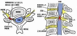 症 性 脊髄 症 頚椎